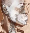 head-neck4