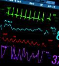 heart-cardio4