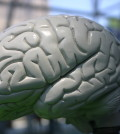 neurological7