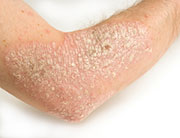 Steroids Often Prescribed for Psoriasis, Countering Guidelines