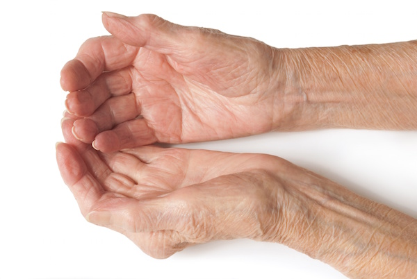 Can Depression Up Odds for Arthritis Linked to Psoriasis?