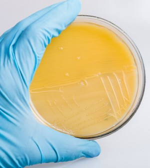 Hand in glove holding the petri dish with bacteria Streptococcus A.