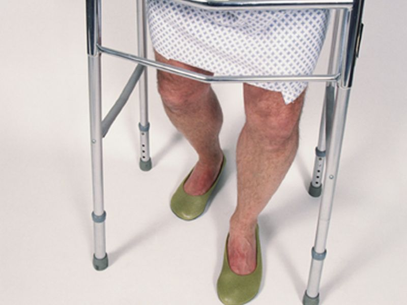 Old Age Alone Not to Blame for Surgical Complications
